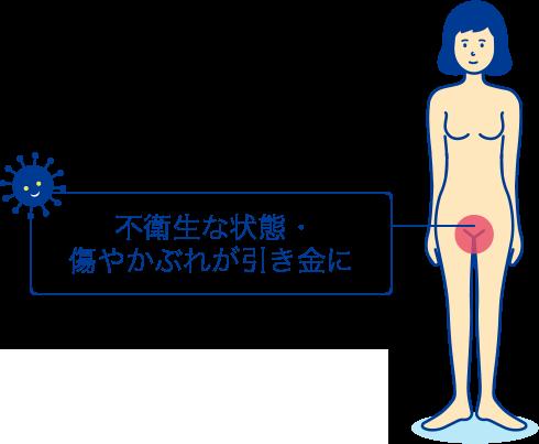 痒み 外 陰部 【医師監修】女性の陰部(デリケートゾーン)のかゆみの原因と改善方法|市販薬に効果はある?